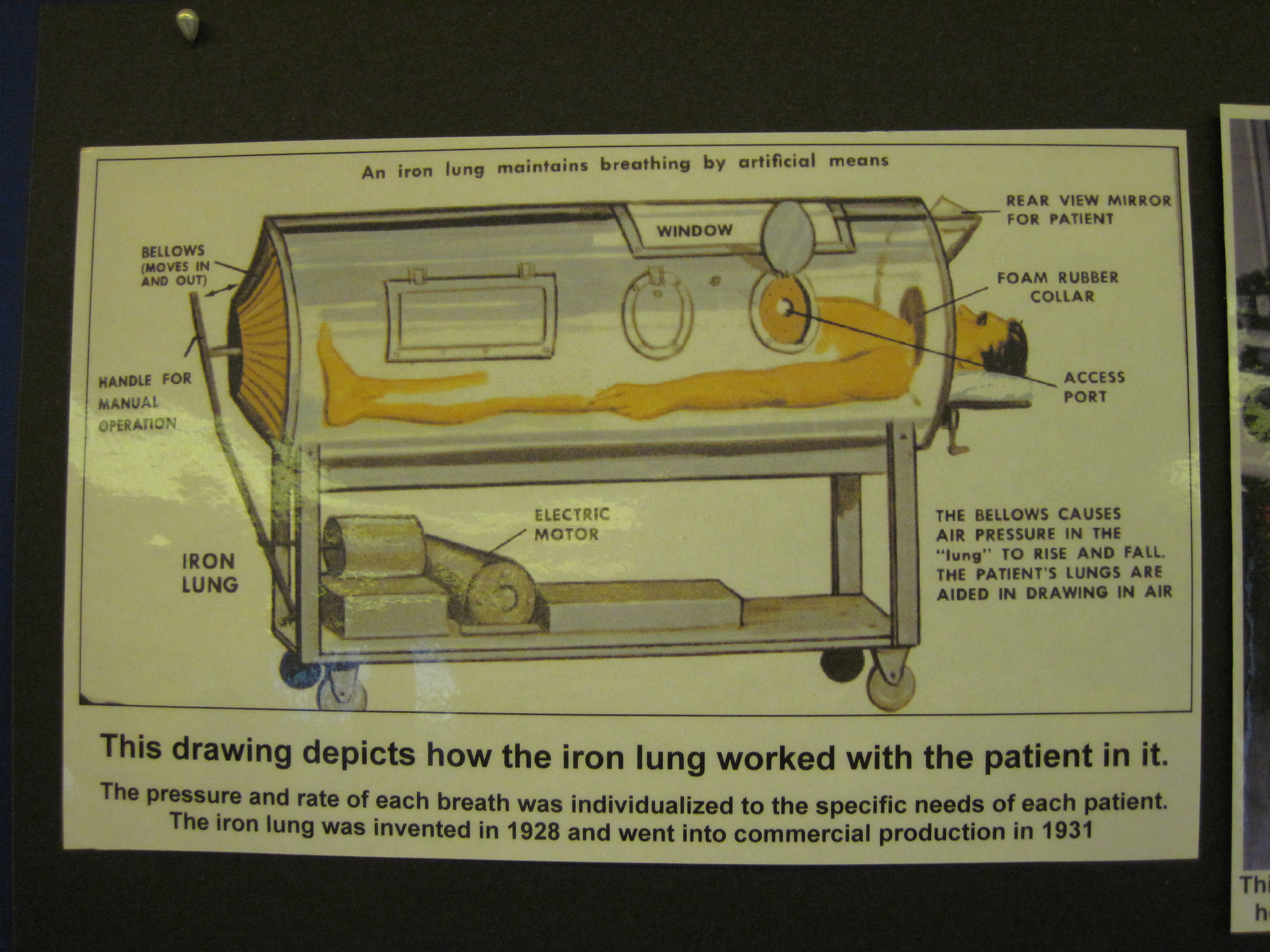 This picture depicts how the iron lung worked with the patient in it